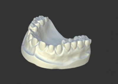 Escaneado-3d-dentadura-escayola